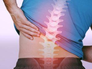 Mal di schiena lombare: cos'è, sintomi, rimedi, esercizi