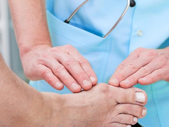Alluce valgo: sintomi, cause, rimedi e cure