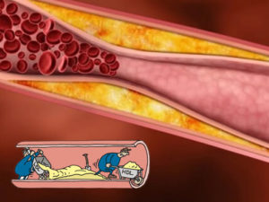 Valori colesterolo alti e normali: quali sono i più a rischio?