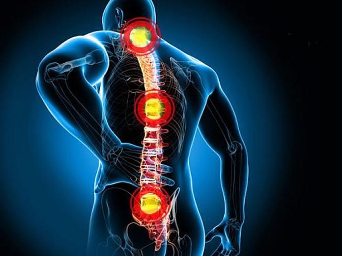 Mal di schiena: cos'è, sintomi, rimedi, esercizi pettorali