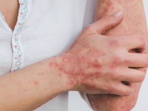 Psoriasi: sintomi, cure e cause. È contagiosa?