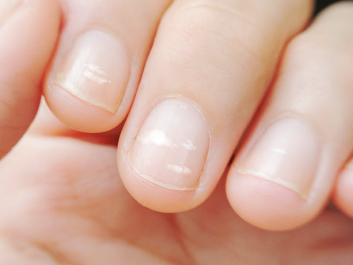 Macchie bianche sulle unghie (o Leuconichia)