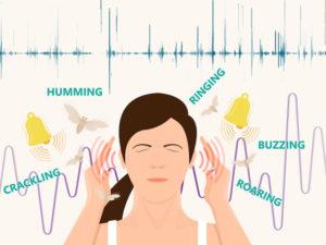 Acufene o Tinnitus