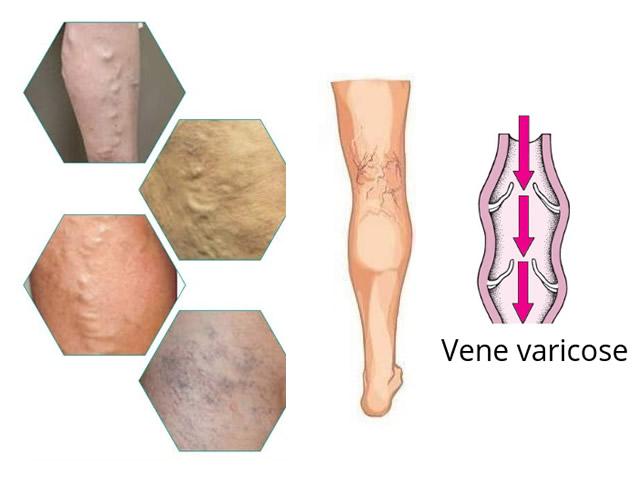 Vene Varicose