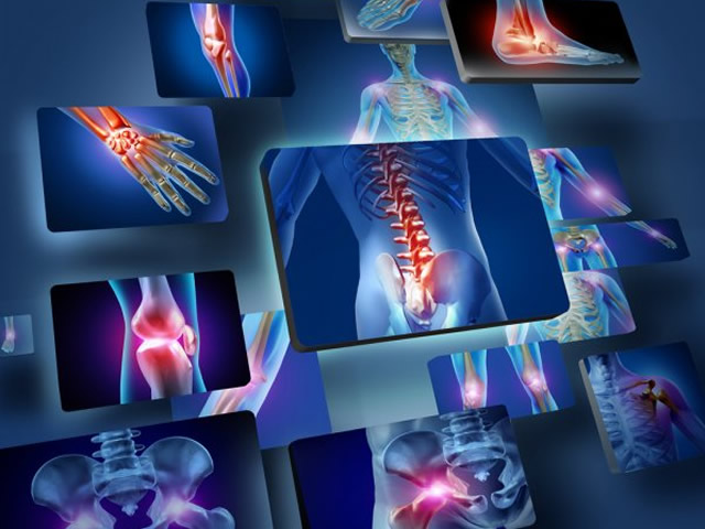 Artrite reumatoide: che cos'è, cause, sintomi e come curarla