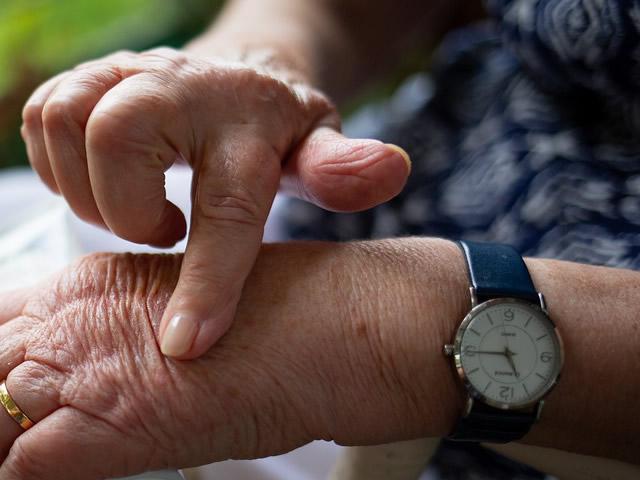 Artrite: che cos'è, cause, sintomi e come curarla